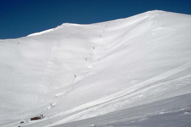 Hanmer-Springs-skilift